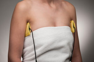 Iontophoresis to treat underarm sweating, here with soft silicone-electrodes